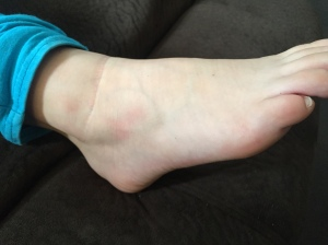 One day post incident and you can see just a touch of bruising under her ankle, but swelling is minimal, if at all.