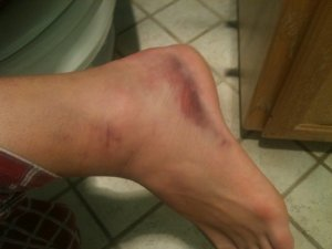 Day 3 after Taylor's rolled ankle (the first time).  She played on this the night before.